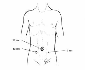Общие принципы лапароскопической герниопластики паховых грыж