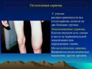 Саркомы мягких тканей. Клинические рекомендации