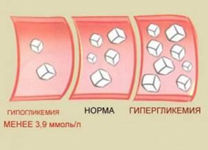 Показания глюкометра при сахарном диабете