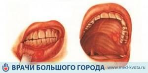 Первые симптомы и признаки начальной стадии
