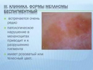 Беспигментная меланома: клиническая картина, диагностика, лечение