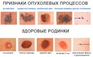 Признак — «выпадение волосяного покрова на поверхности невуса».