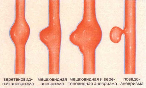 Классификация аневризмы
