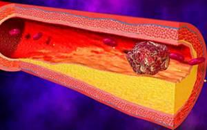 Причины развития отклонений свертываемости крови