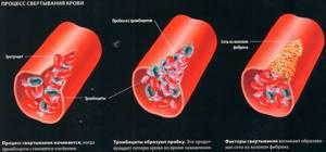Анализ крови на свертываемость- норма, расшифровка