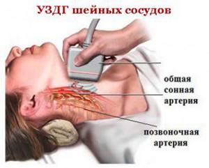 Лечение синдрома ПА при остеохондрозе