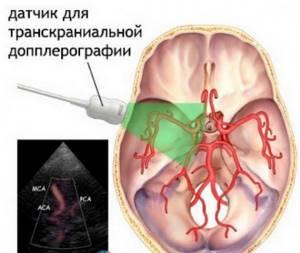 Виды ультразвукового исследования сосудов головы и шеи