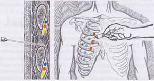 Лечебные мероприятия и лекарства