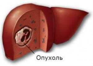 Механизм канцерогенного действия