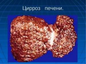 Токсический цирроз печени: причины возникновения
