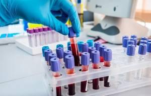 Что из себя представляет биохимический анализ крови