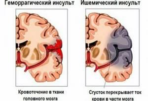 Первые признаки тяжелого инсульта