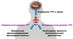 Симптомы и причины возникновения гипоплазии щитовидки у взрослых