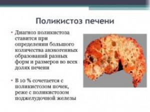 Поликистоз печени лечение народными средствами