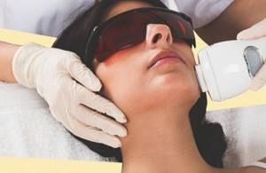 Лечение пиогенной гранулемы кожи