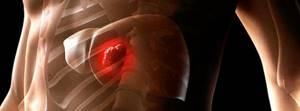 Как выявить HCV на ранней стадии
