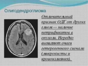 Олигодендроглиома: симптомы, виды, прогноз продолжительности жизни и выздоровления