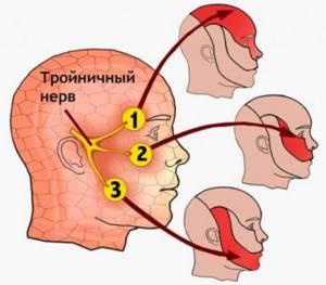 Профилактика неврита тройничного нерва