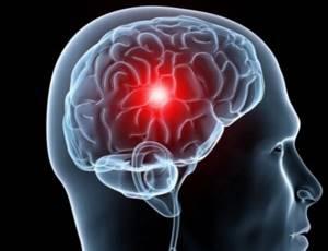 Первая помощь при инсульте: алгоритм действий при выявлении первых признаков инсульта