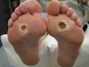 Лечение гестационного диабета