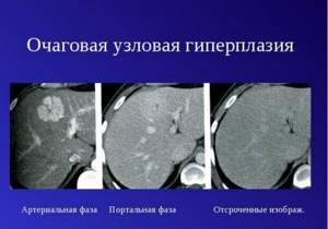 Фокальная нодулярная гиперплазия печени лечение