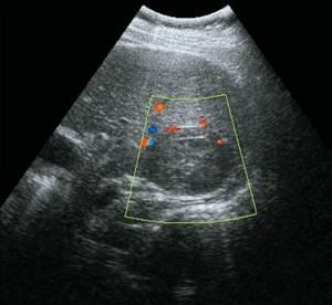 Некоторые аспекты диагностики фокальной нодулярной гиперплазии печени (фибронодулярной гиперплазии)