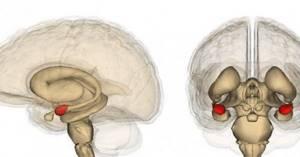 Эктопия миндалины мозжечка: причины, симптомы, терапевтические мероприятия