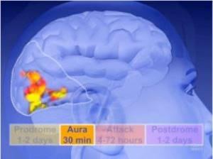Что такое мигрень с аурой и без неё, симптомы и последствия