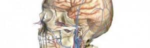 Церебральная ангиодистония. Это уже конец?