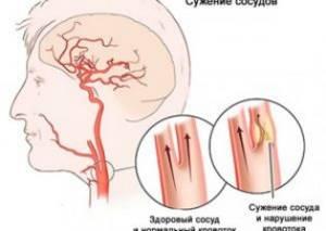Ангиодистония сосудов головного мозга