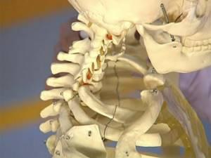 Симптомы и признаки защемления сосудов в шее
