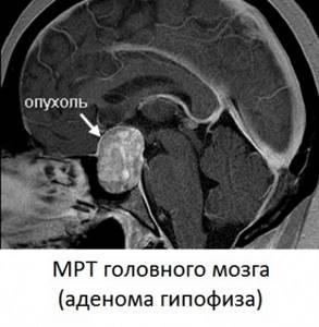 Анализ на гормоны и другие методы диагностики