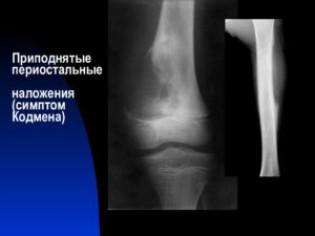 Остеогенная саркома рентгенологические признаки