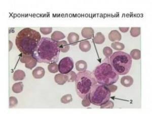 Показатели крови при моноцитарном лейкозе