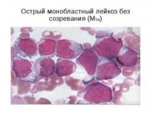 Признаки острого и хронического моноцитарного лейкоза