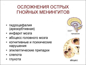 Как лечить гнойный менингит?