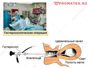 Полип эндометрия и беременность