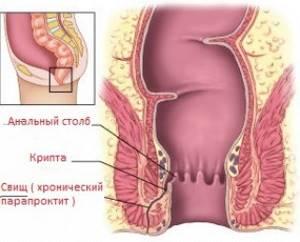 Симптомы парапроктита