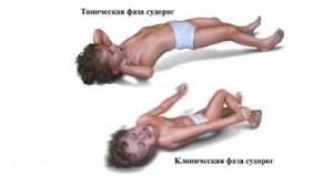 Приступы эпилепсии и их фазы у детей и взрослых