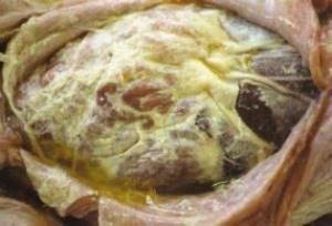 Чем опасен перитонит? Причины, симптомы, лечение