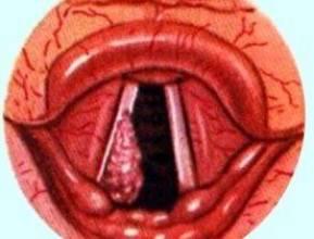 Рак горла – диагностика