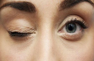 Причины спазма глаза