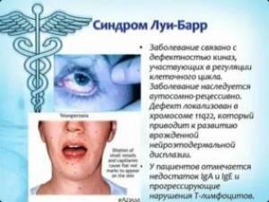 Что таит синдром Луи Бара?