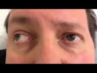 Офтальмоплегия: межъядерная, наружная и другие виды