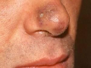 Патогенез заболевания