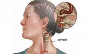 Способы лечения народными средствами менингиомы головного мозга