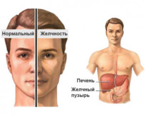Последствия гепатита B