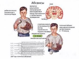 Формы болезни