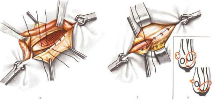Герниопластика при паховых грыжах