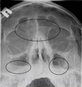 Гайморит на рентгеновском снимке пазух носа: как определить болезнь
